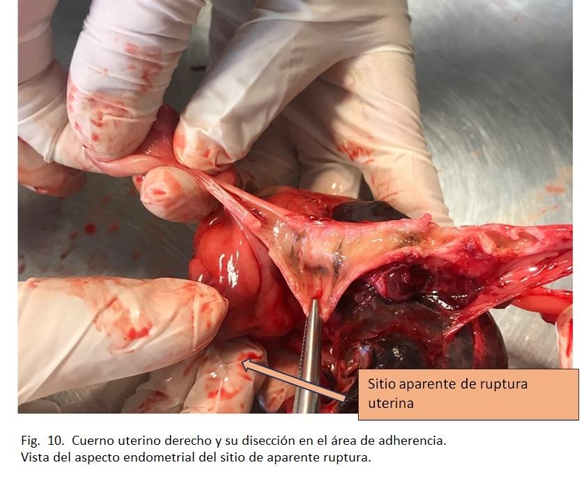 Fig 10.  Cuerno uterino derecho y su disección en el área de adherencia. Vista del aspecto endometrial del sitio de aparente ruptura.