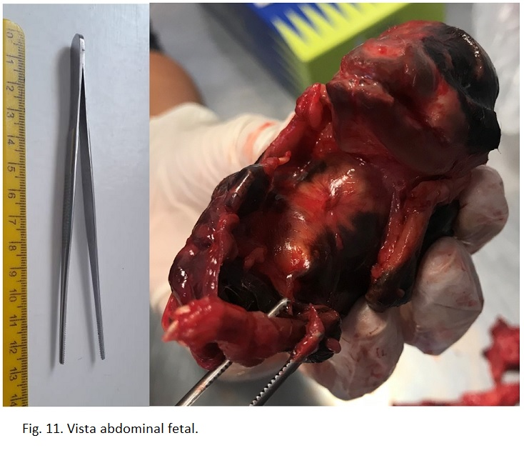 Fig 11. Vista abdominal fetal.