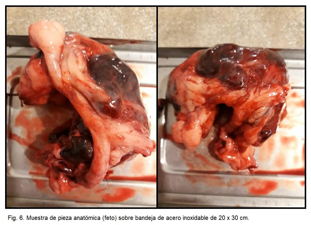 Fig 6. Muestra de pieza anatómica (feto) sobre bandeja de acero inoxidable de 20 x 30 cm.