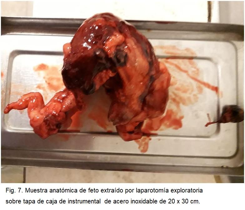 Fig 7. Muestra anatómica de feto extraído por laparotomía exploratoria sobre tapa de caja de instrumental  de acero inoxidable de 20 x 30 cm.