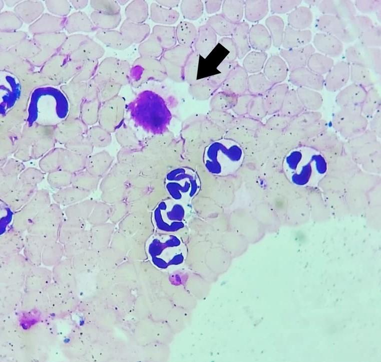 https://www.seleccionesveterinarias.com/files/Fig.1 Tinción Giemsa – Aumento (1000x). Presencia de mórula de Ehrlichia canis en un monocito.